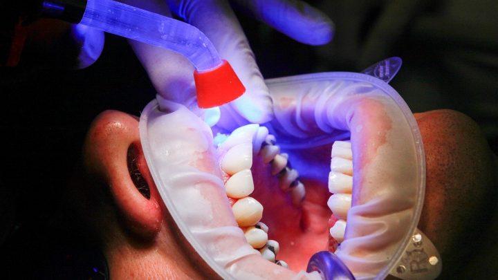 La limpieza dental y otras recomendaciones para una dentadura envidiable