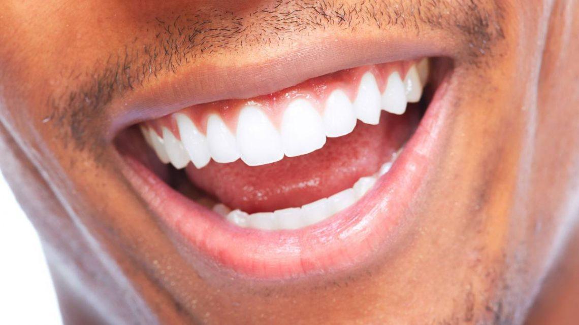 ¿Por qué es tan importante la estética dental?